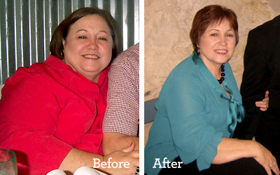 Image of Vicki Valenta weight loss, before and after